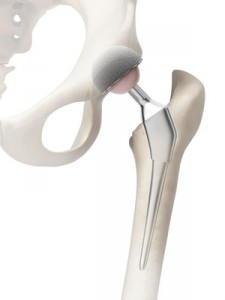 Der Herstelller eines Bestandteils eiern Prothese haftet in Frankreich